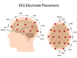 colocação-do-eléctrodo-de-eeg-29444803